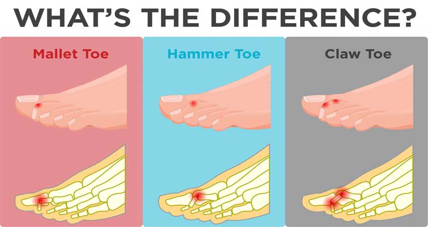 image of different toe deformities