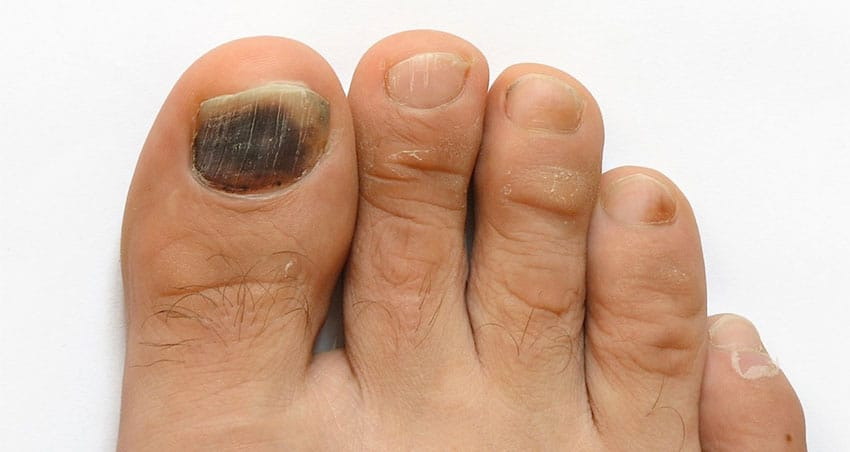 image of black toenail